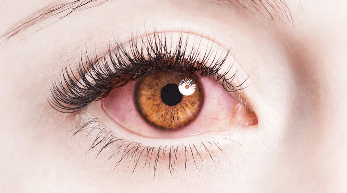 reasons for red eyes