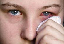 How to Deal with Conjunctivitis